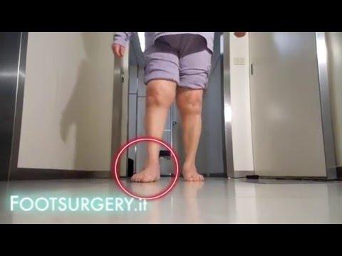 Come trattare un ernia del rachide cervicale