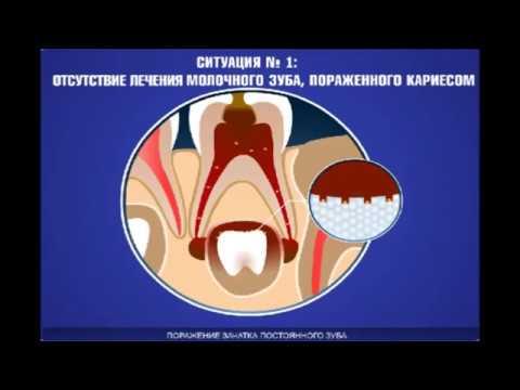 Ovarian cancer etiology