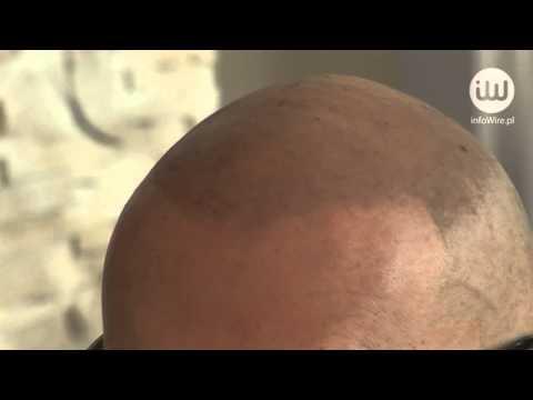 Łopianu olej rycynowy do włosów kupić