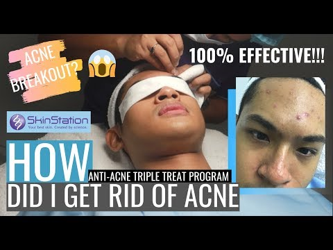 SKINSTATION'S EFFECTIVE ANTI-ACNE TREATMENT 2019 #skincare #skincareroutinesforacne #skinstation