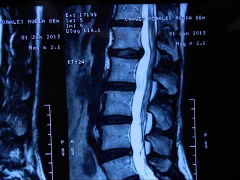 Come prevenire osteochondrosis a donne