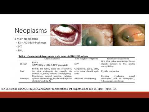 Icd 10 code for papilloma left upper eyelid