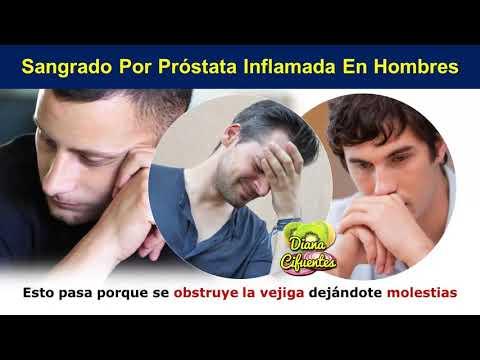 Alimentos chatarra para adenoma de próstata