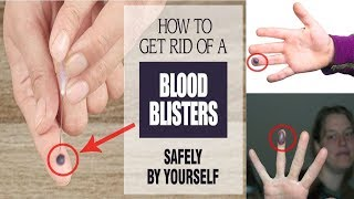 How to Get Rid of a Blood Blister || Blood Blister Home Remedies