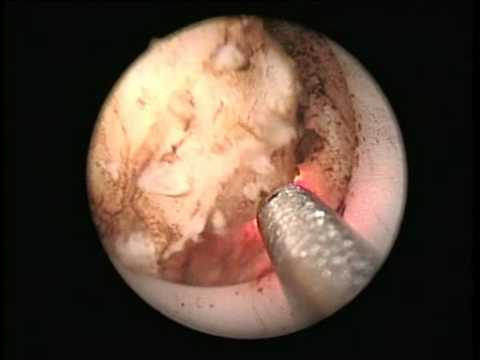 Prostate Endoscopic Vaporesection - Continuous Wave 2 µm Laser