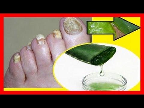El hongo de las uñas en los pies mikospor