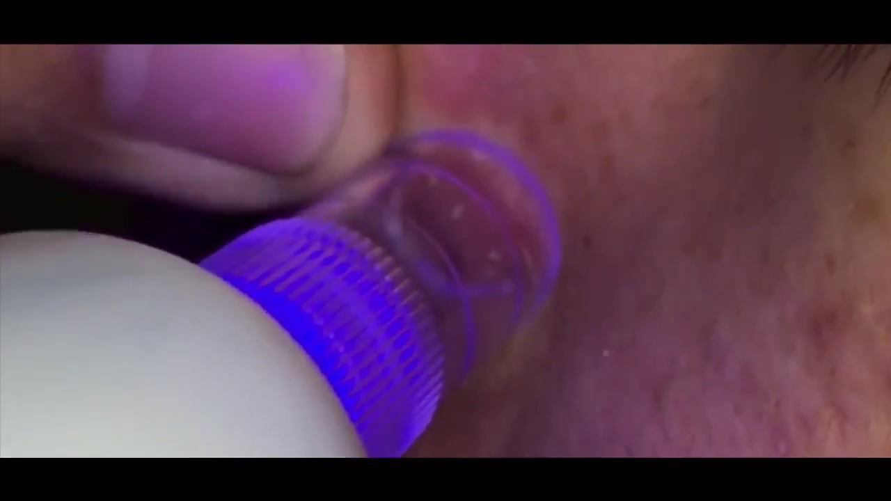 Видео Spot Cleaner