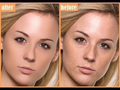 Beremennosty pigmentation tao