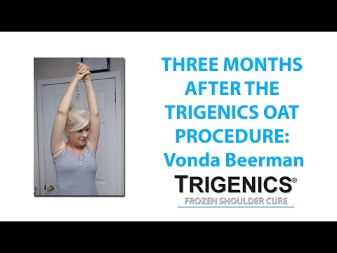 frozen shoulder return, frozen shoulder come back, Trigenics OAT Procedure, after treatment