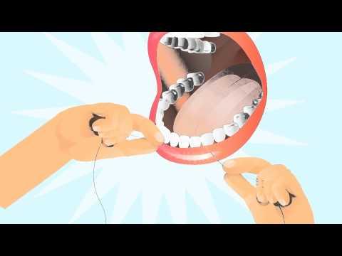 Kaip prižiūrėti dantis?