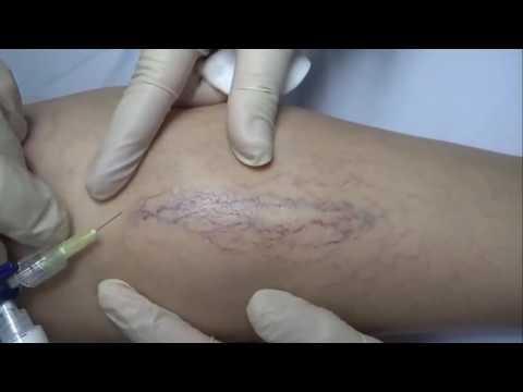 Varicosity e mezzi di trattamento