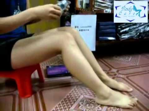 ICD 10 thrombophlebitis ของแขนขาลดลง