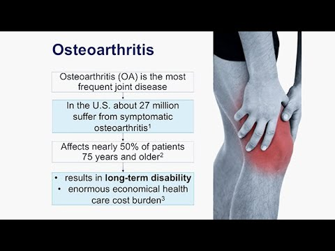 Video Lendenwirbel Osteochondrose