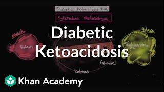 Acute complications of diabetes - Diabetic ketoacidosis | NCLEX-RN | Khan Academy