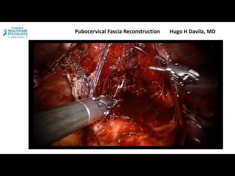 Metode de tratare a bolilor articulare