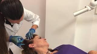 Toxina botulinica  - Dra. Ainhoa Placer