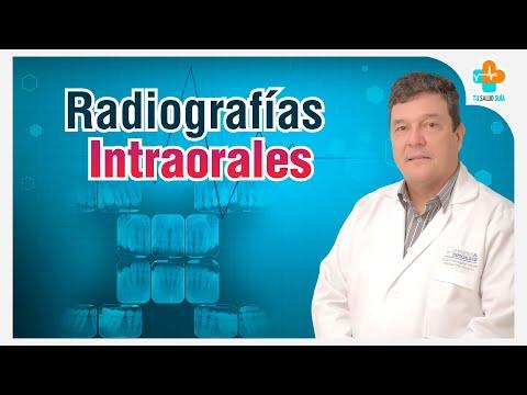 Radiografías Intraorales