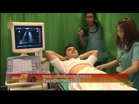 เส้นเลือดขอดของแขนขาลดลงในการรักษา