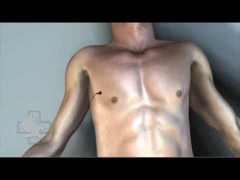 ARS Βελόνα Αποσυμπίεσης Πνευμοθώρακα