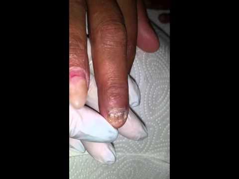 Beim Kind das Ekzem auf den Fingern der Hände die Behandlung