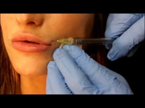 Lip Filler Video