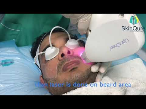 Beard shaping at SkinQure