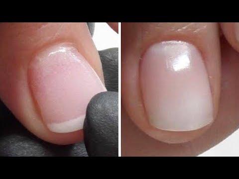 Der Formaldehyd von gribka des Nagels