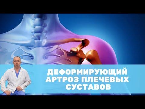 Деформирующий артроз плечевых суставов