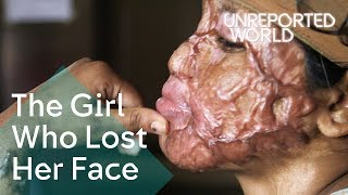 Bangladesh acid attack survivors helping each other heal | Unreported World