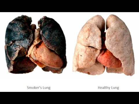 Video Quit Smoking: Smoking Kills Watch Effects Of Smoking Cigarettes Side Effects Lung Cancer Commercial