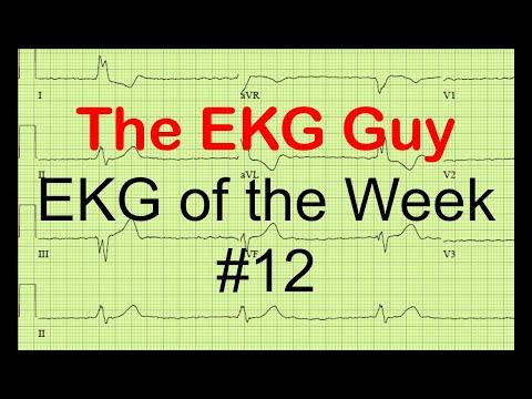 EKG of the Week #12