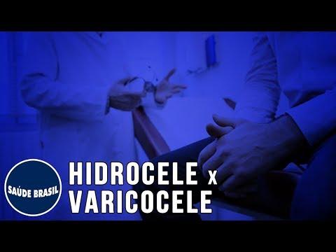 Insuficiență venoasă cronică și varicoză