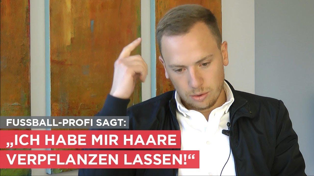 Fußballprofi aus Österreich hatte Haarverpflanzung in der Moser Klinik