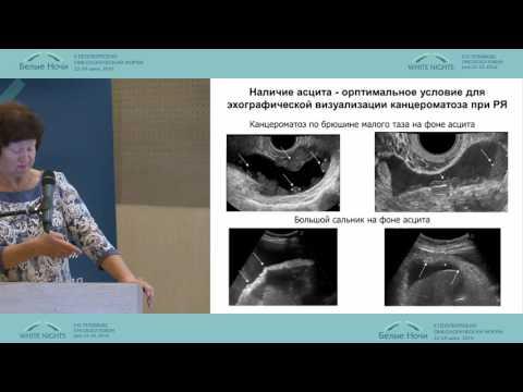 Лечение цирроза гомеопатией