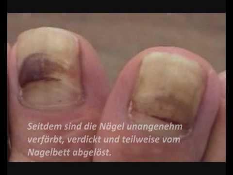 Лікування gribka нігтів auf den Händen і die Beine
