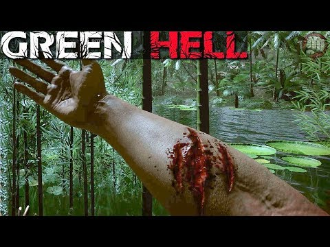 OUCH! That Hurt | Green Hell Gameplay | S4 EP76