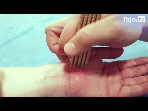 Kość kciuka na forum