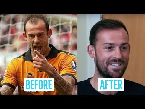 Hair Transplant Results - Steven Fletcher's before and after