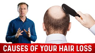 The Underlying Root Cause(s) of Your Hair Loss