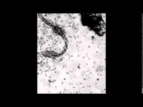 La photo des vers des parasites de lintestin de la personne