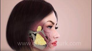 Bichectomy (Fat Removal From The Cheek) - Nefertiti Cheek -   How is it done? Guncel Ozturk, MD