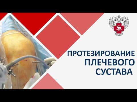 Протезирование плечевого сустава видео. 💪 Видео о методах протезирования плечевого сустава. 12+