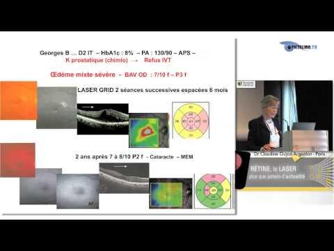 Laser epilyatsiya la personne le coût