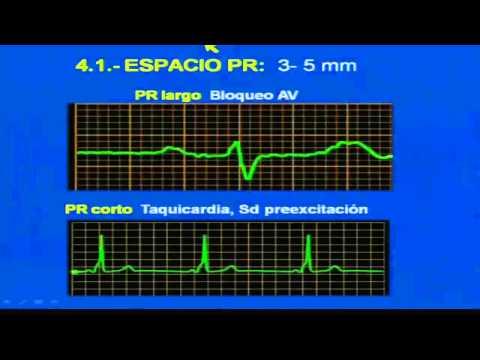 Simular la presión arterial