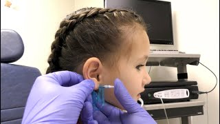 Ear Piercings (How They Are Performed In A Doctors Office)