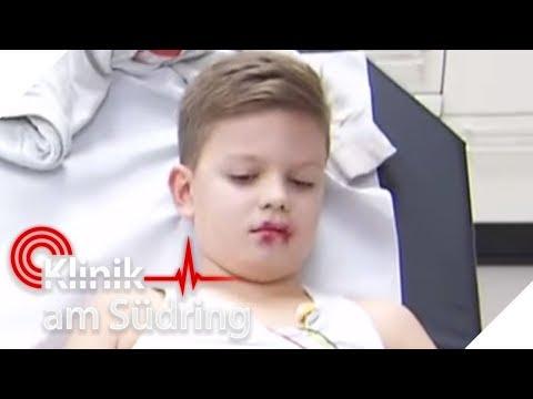 Instabiler Halswirbel Behandlung