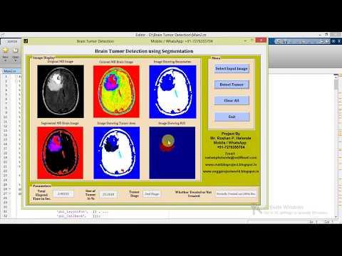 Brain Tumor Detection Using Segmentation Matlab Project with
