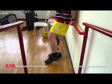RM nella diagnosi delle malattie dellarticolazione della spalla