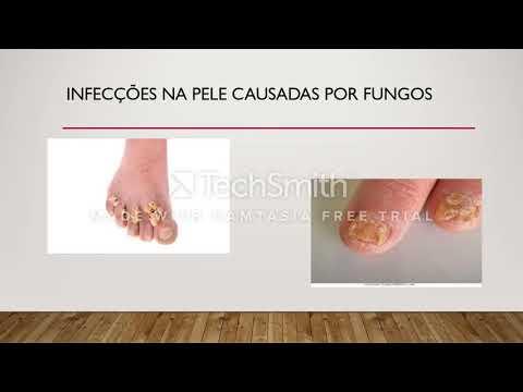 Unguentos com enxofre de um fungo