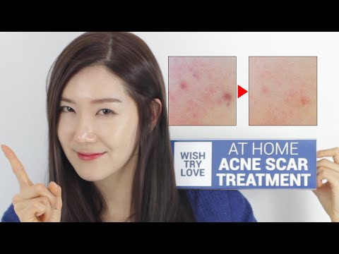 Video How to Get Rid of Acne Scars Fast? At Home Acne Scar Treatment | Wishtrend